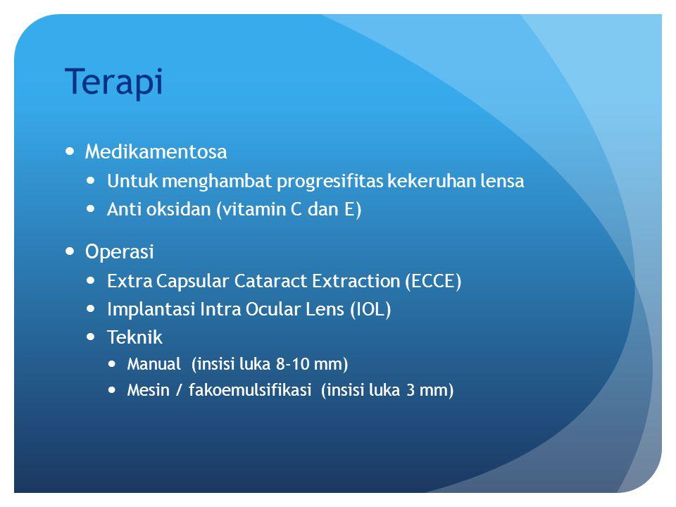 Terapi Medikamentosa Untuk menghambat progresifitas kekeruhan lensa Anti oksidan (vitamin C dan E) Operasi Extra Capsular Cataract Extraction (ECCE) I