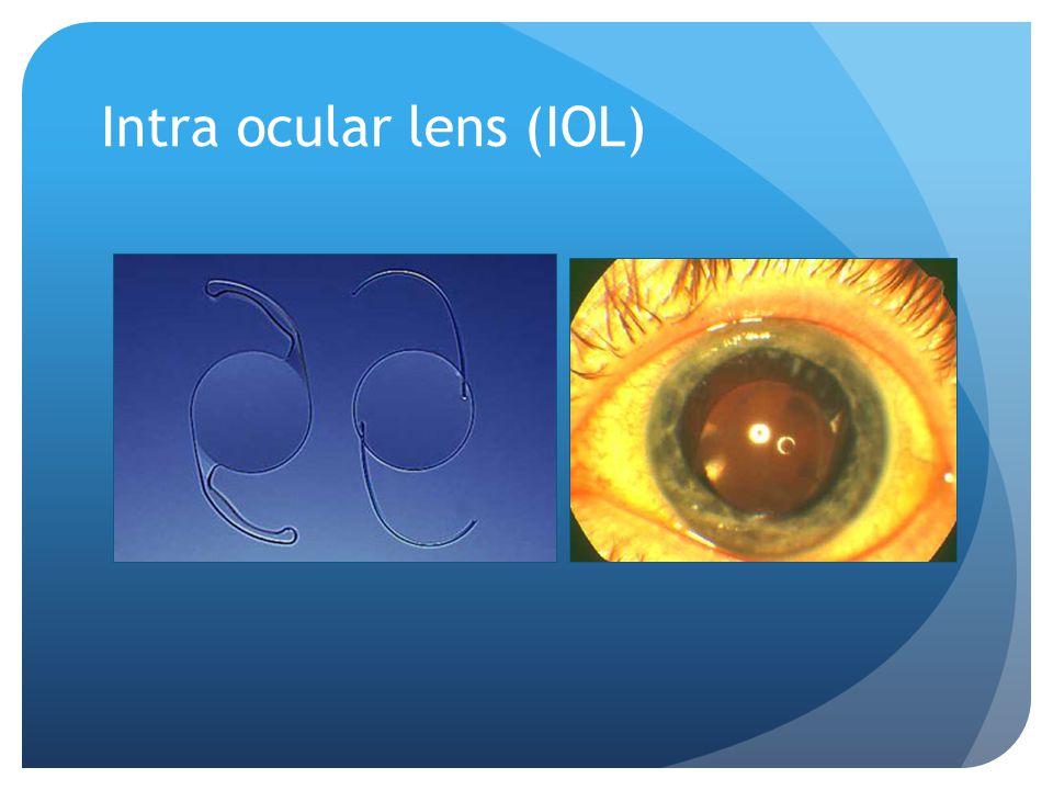 Intra ocular lens (IOL)