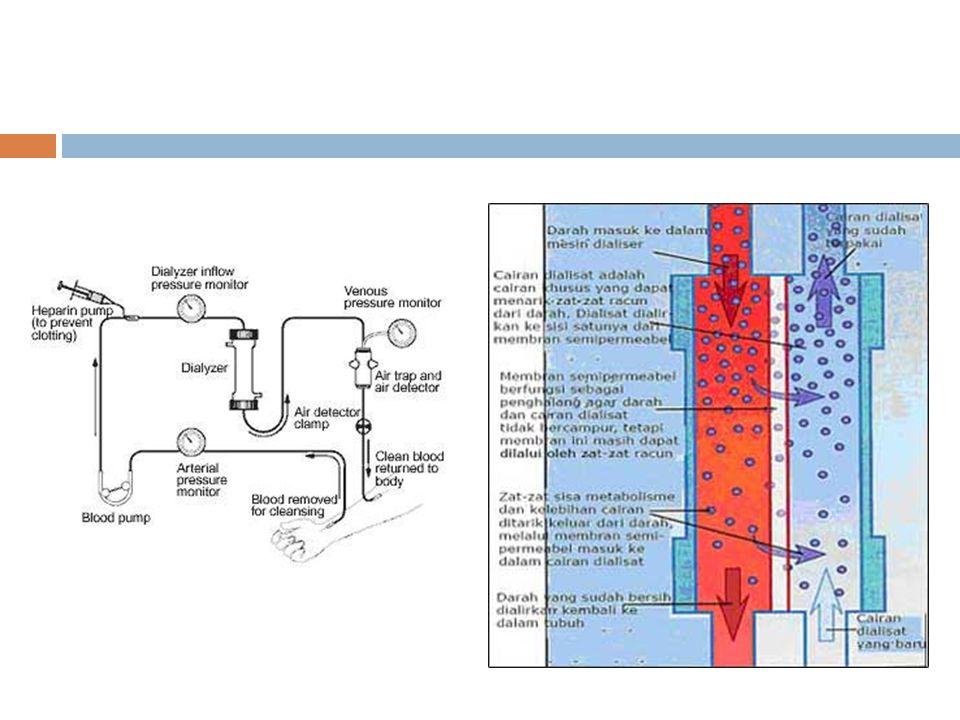  Mesin hemodialisis (HD) terdiri dari pompa darah, sistem pengaturan larutan dialisat, dan sistem monitor.