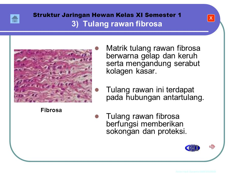 Anim Hadi Susanto 08563559009 2) Tulang rawan elastis Tulang rawan ini terdapat pada epiglotis, laring, saluran eustachius, saluran telinga luar dan d