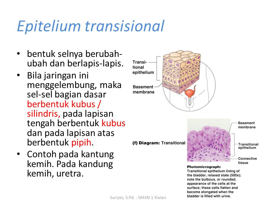 Epitelium transisional bentuk selnya berubah- ubah dan berlapis-lapis. Bila jaringan ini menggelembung, maka sel-sel bagian dasar berbentuk kubus / si