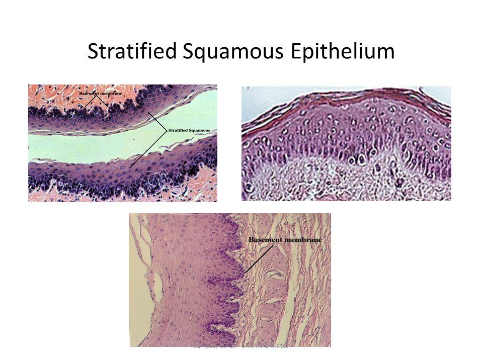 Stratified Squamous Epithelium Suripto, S.Pd. - SMAN 1 Klaten