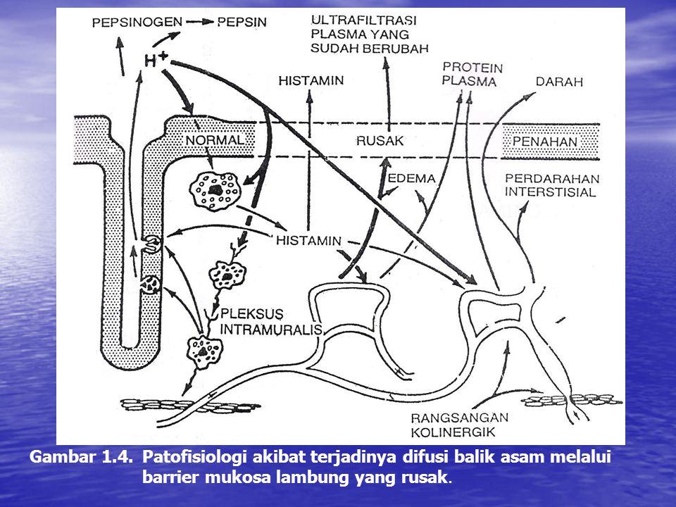 Gambar 1.4. Patofisiologi akibat terjadinya difusi balik asam melalui barrier mukosa lambung yang rusak.