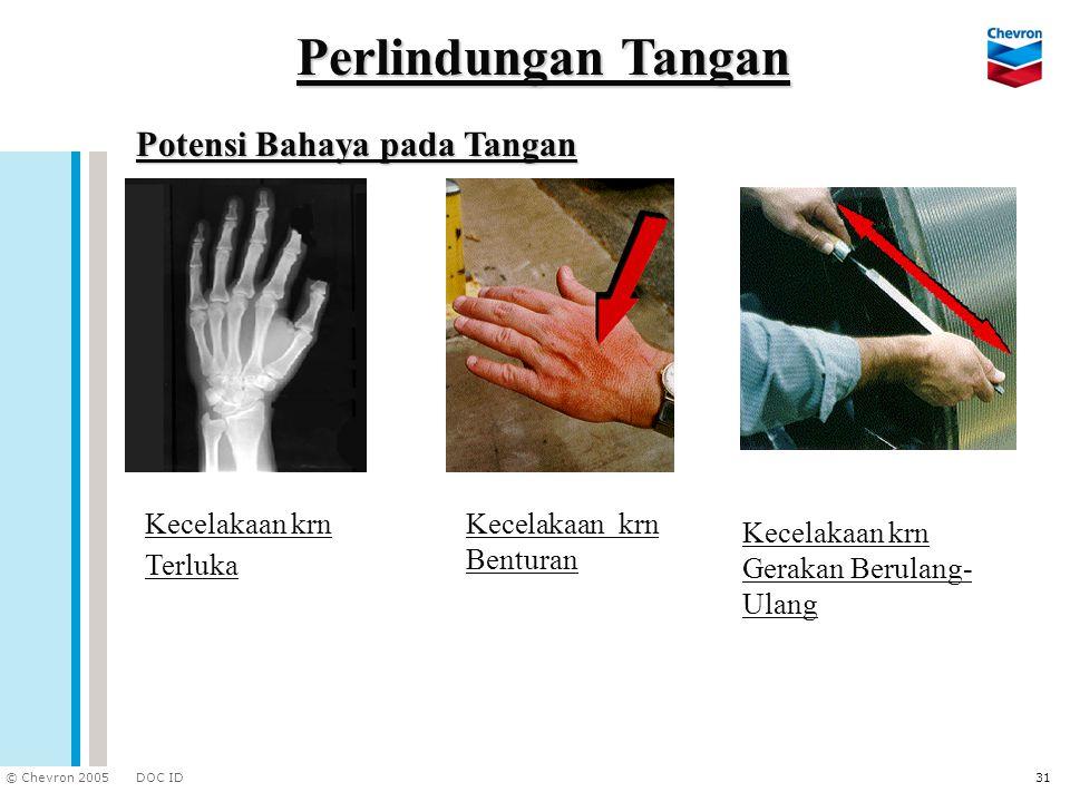 DOC ID © Chevron 2005 31 Potensi Bahaya pada Tangan Kecelakaan krn Terluka Kecelakaan krn Benturan Kecelakaan krn Gerakan Berulang- Ulang Perlindungan