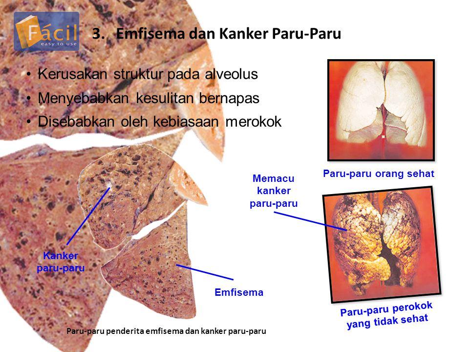 3.Emfisema dan Kanker Paru-Paru Kerusakan struktur pada alveolus Menyebabkan kesulitan bernapas Disebabkan oleh kebiasaan merokok Emfisema Kanker paru-paru Paru-paru penderita emfisema dan kanker paru-paru Paru-paru orang sehat Paru-paru perokok yang tidak sehat Memacu kanker paru-paru
