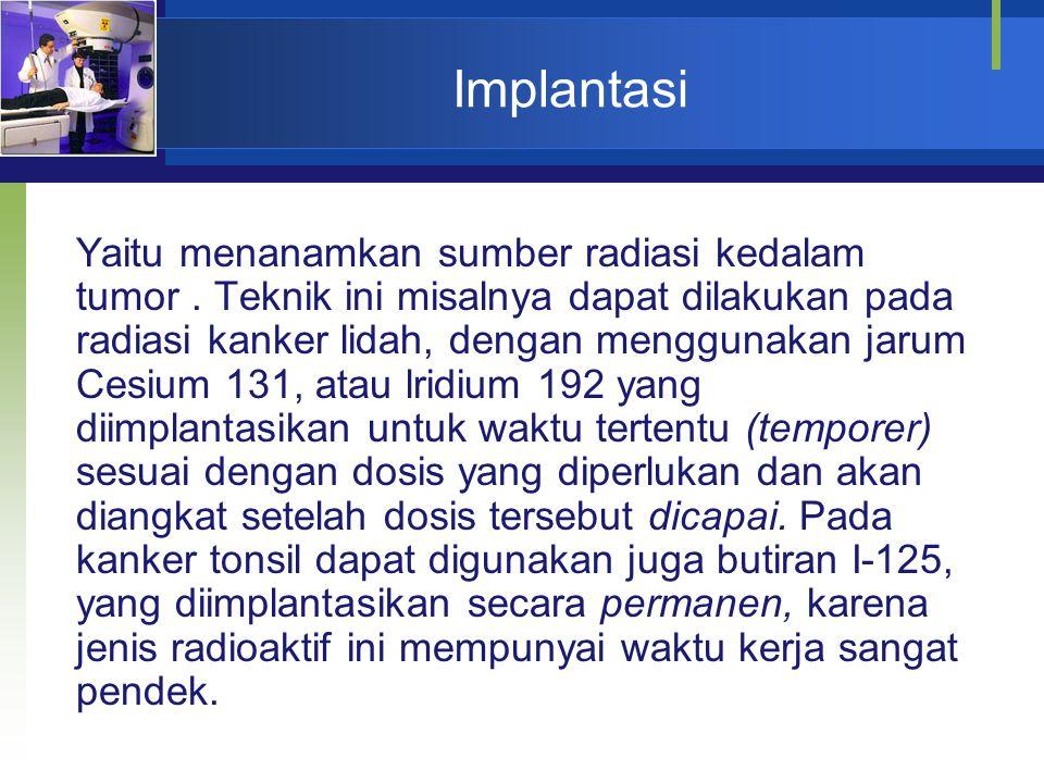 Implantasi Yaitu menanamkan sumber radiasi kedalam tumor. Teknik ini misalnya dapat dilakukan pada radiasi kanker lidah, dengan menggunakan jarum Cesi