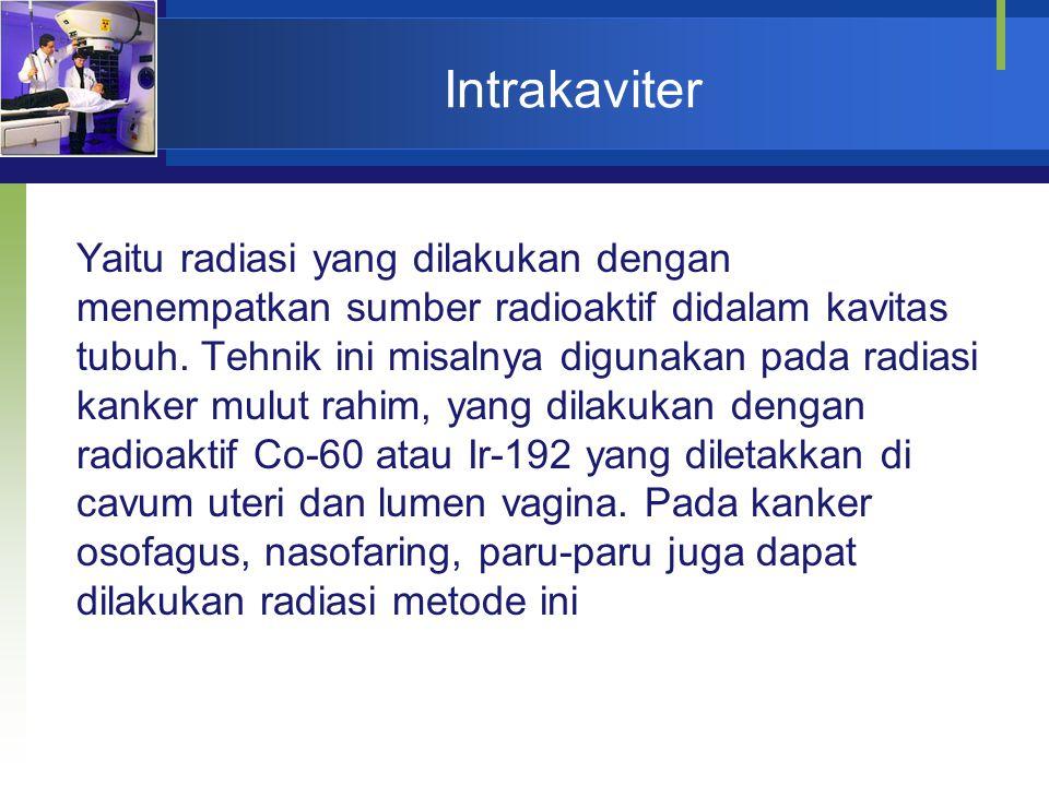 Intrakaviter Yaitu radiasi yang dilakukan dengan menempatkan sumber radioaktif didalam kavitas tubuh. Tehnik ini misalnya digunakan pada radiasi kanke