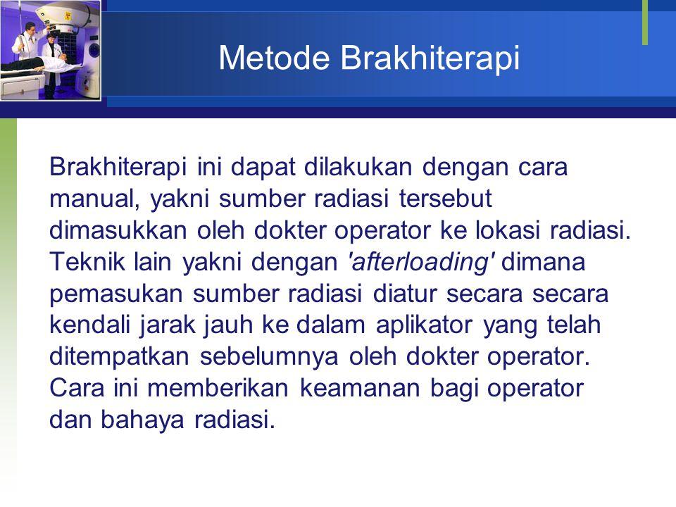 Metode Brakhiterapi Brakhiterapi ini dapat dilakukan dengan cara manual, yakni sumber radiasi tersebut dimasukkan oleh dokter operator ke lokasi radia