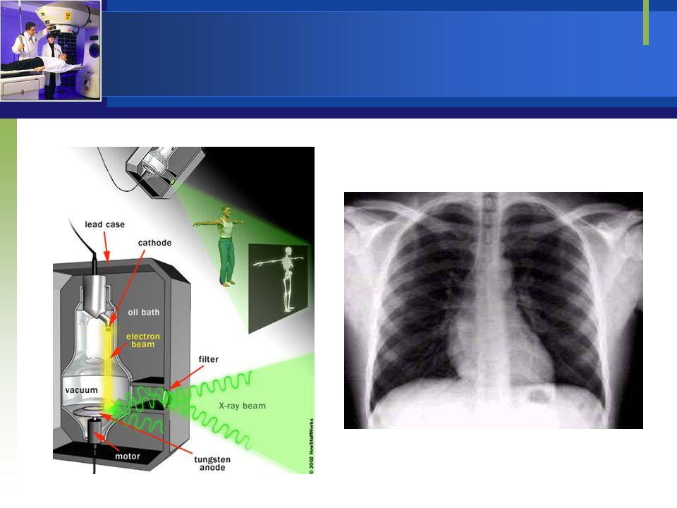Kedokteran Nuklir  Kegiatan kedokteran nuklir menggunakan radiasi dari sumber terbuka untuk tujuan diagnosa, terapi, dan penelitian medik.