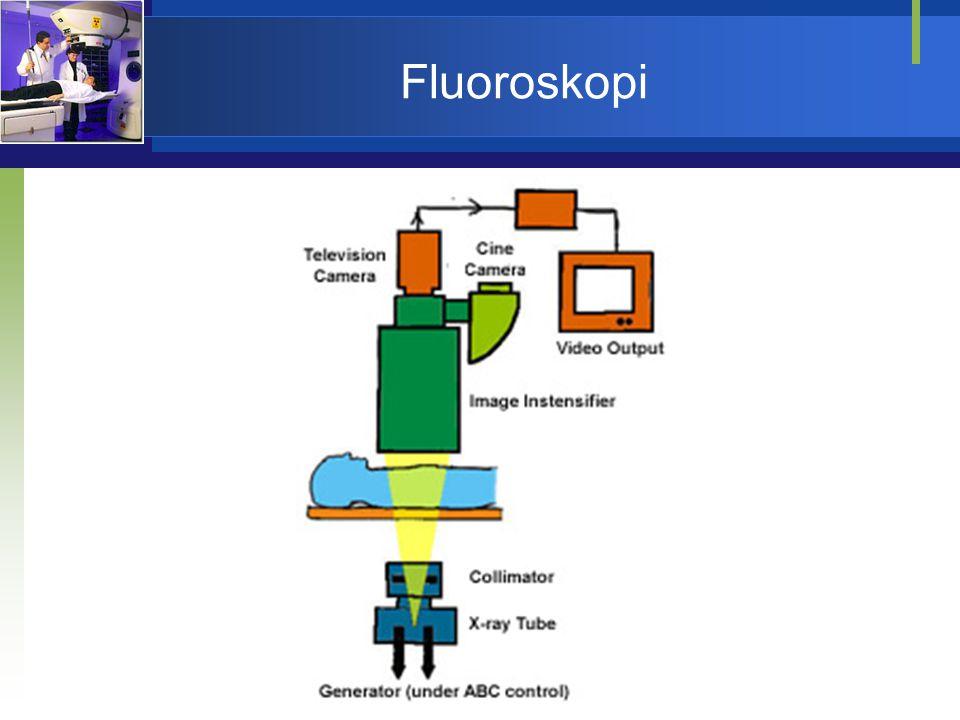 Diagnosis dengan Radioisotop  Studi in-vitro dilakukan dengan teknik radioimmunoassay (RIA).