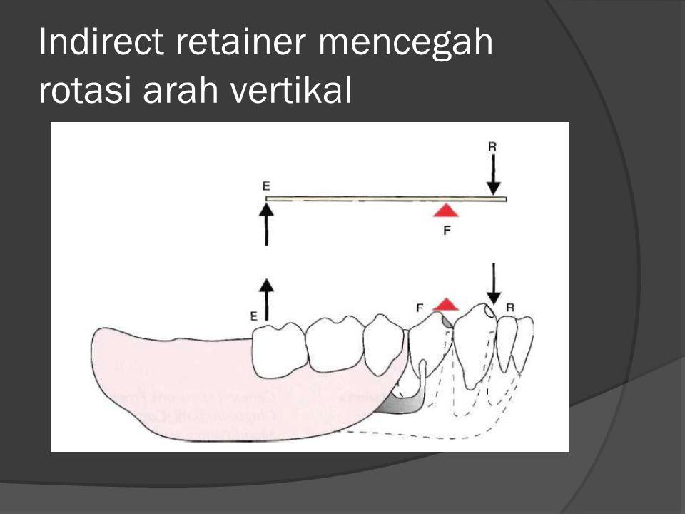 Indirect retainer mencegah rotasi arah vertikal