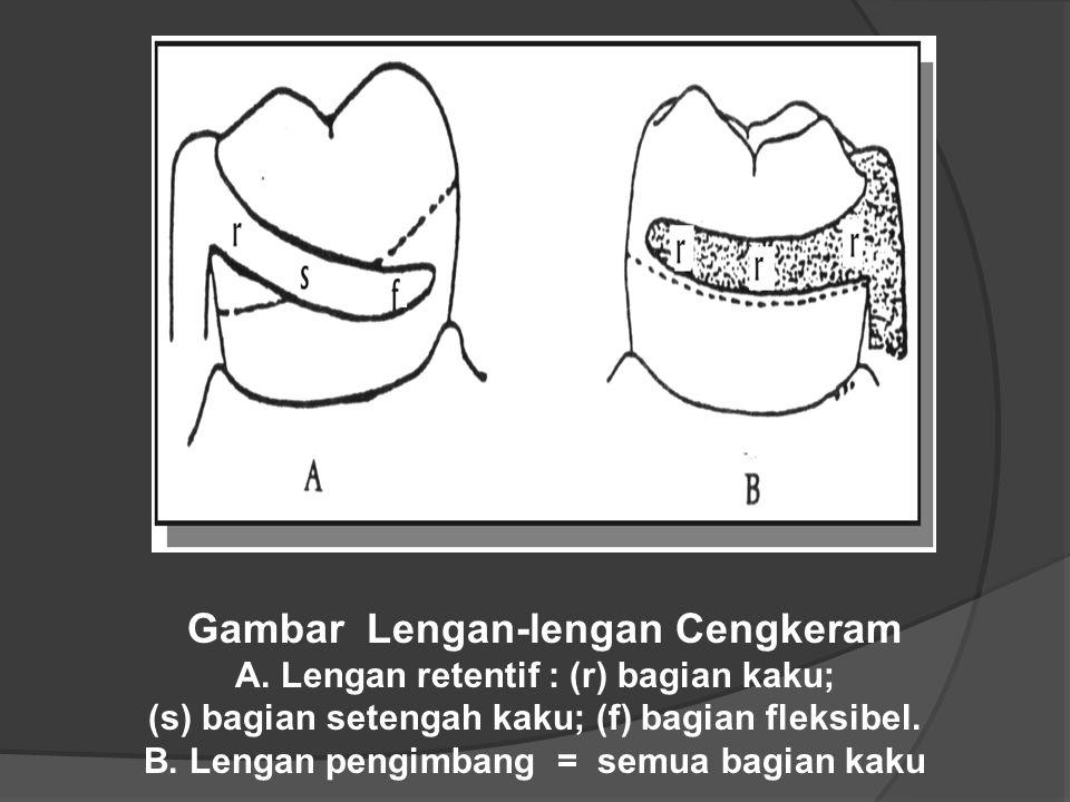 Gambar Lengan-lengan Cengkeram A. Lengan retentif : (r) bagian kaku; (s) bagian setengah kaku; (f) bagian fleksibel. B. Lengan pengimbang = semua bagi
