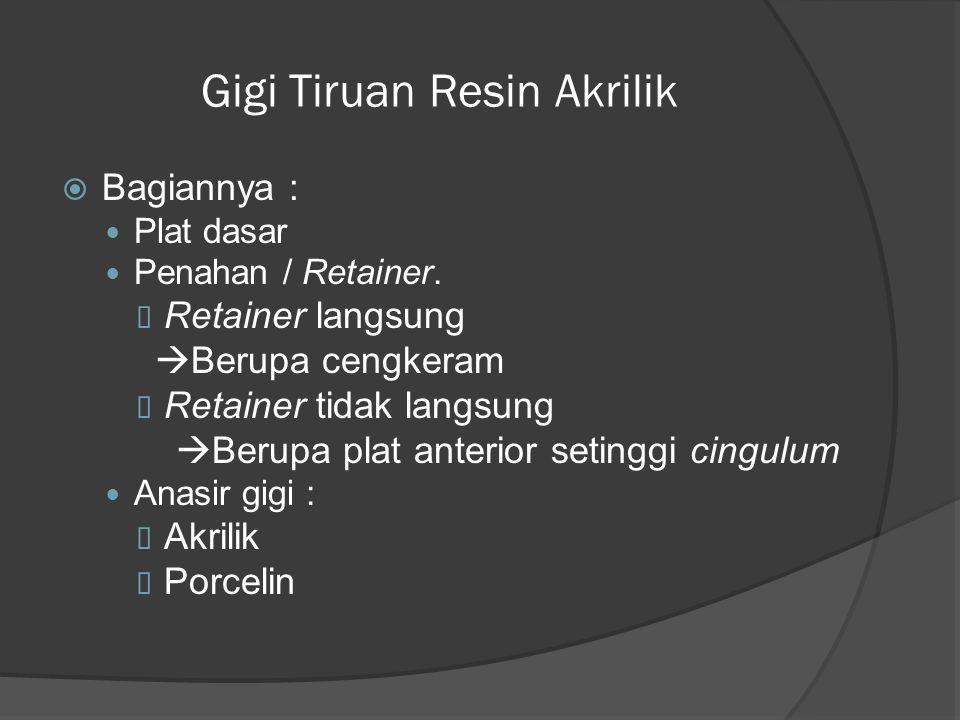 Gigi Tiruan Resin Akrilik  Bagiannya : Plat dasar Penahan / Retainer.  Retainer langsung  Berupa cengkeram  Retainer tidak langsung  Berupa plat