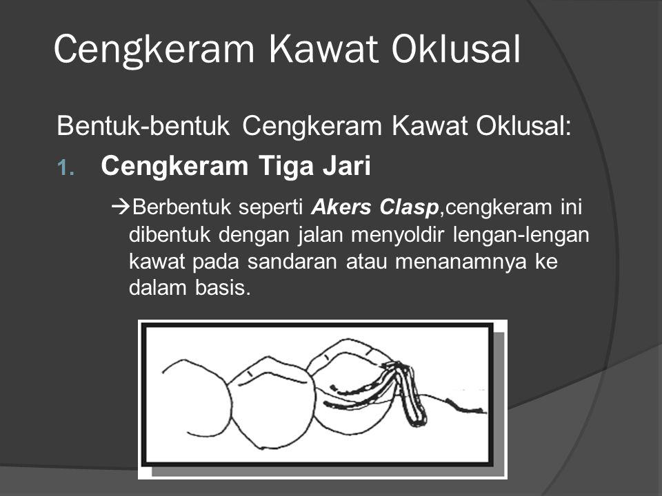 Cengkeram Kawat Oklusal Bentuk-bentuk Cengkeram Kawat Oklusal: 1. Cengkeram Tiga Jari  Berbentuk seperti Akers Clasp,cengkeram ini dibentuk dengan ja