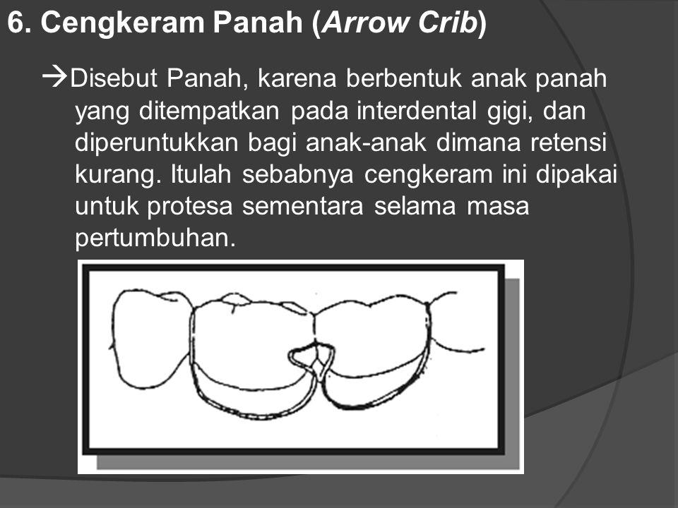 6. Cengkeram Panah (Arrow Crib)  Disebut Panah, karena berbentuk anak panah yang ditempatkan pada interdental gigi, dan diperuntukkan bagi anak ‑ ana