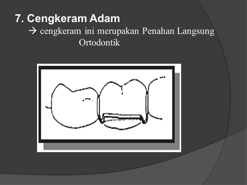 7. Cengkeram Adam  cengkeram ini merupakan Penahan Langsung Ortodontik