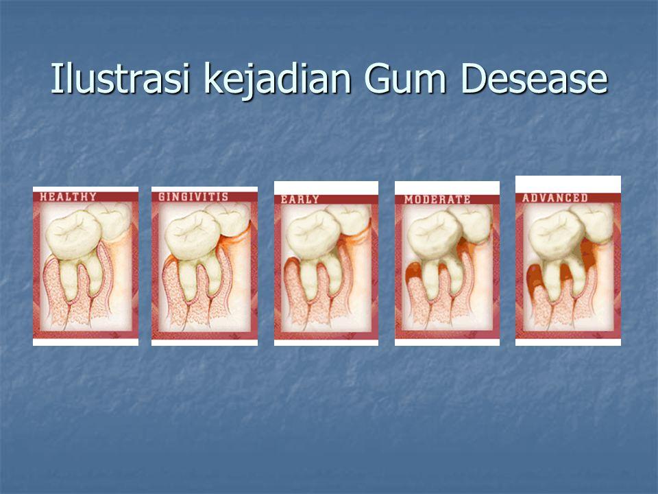 Ilustrasi kejadian Gum Desease