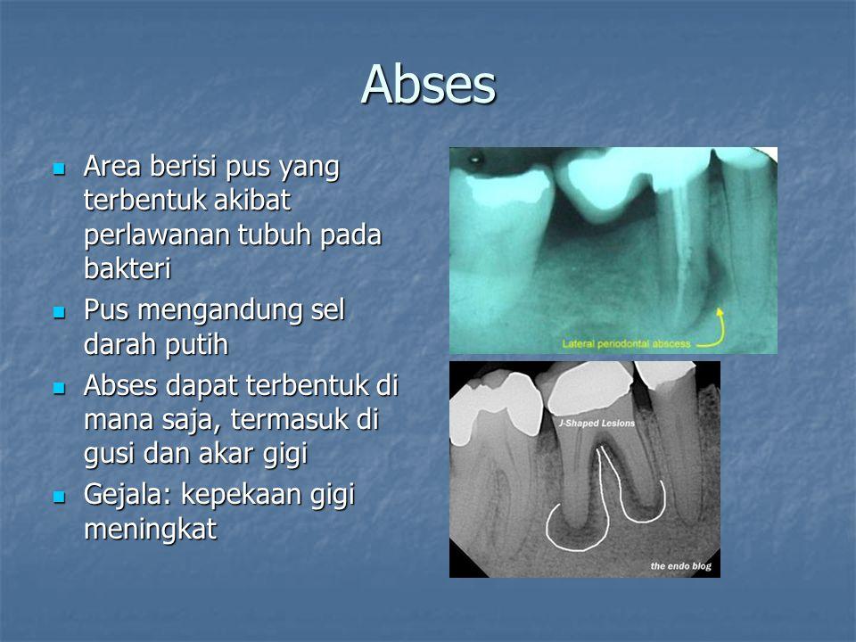 Abses Area berisi pus yang terbentuk akibat perlawanan tubuh pada bakteri Area berisi pus yang terbentuk akibat perlawanan tubuh pada bakteri Pus meng