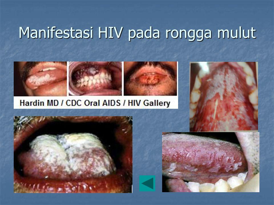 Manifestasi HIV pada rongga mulut