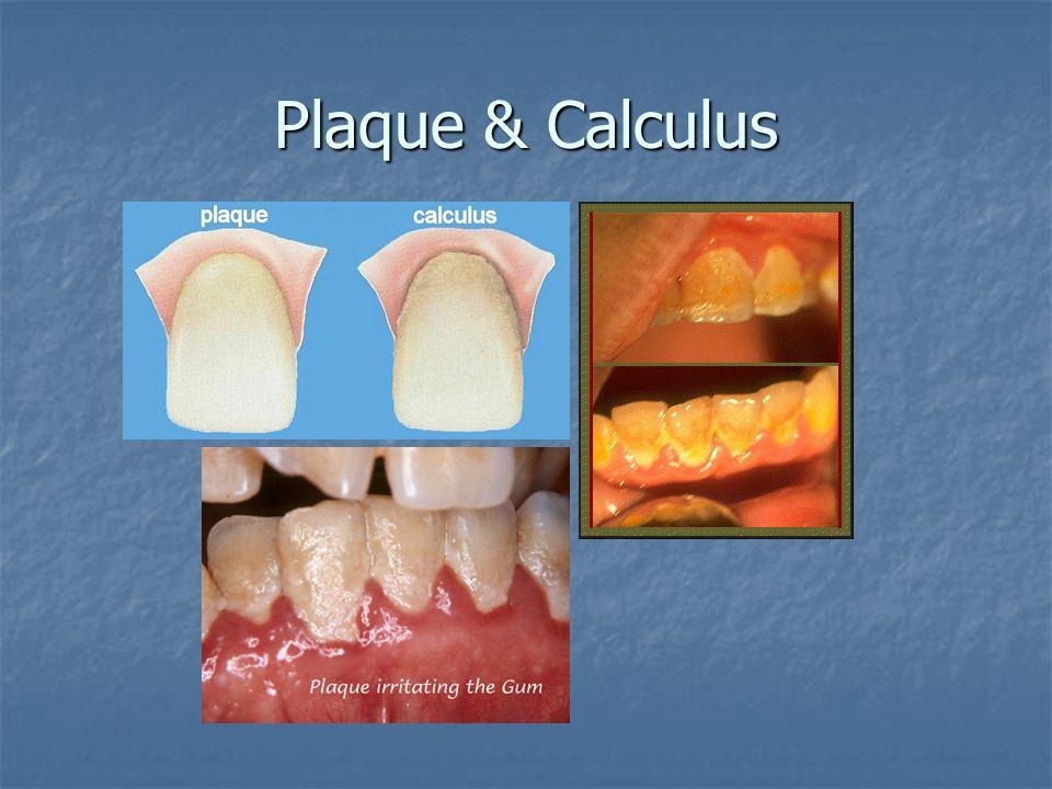 Plaque & Calculus