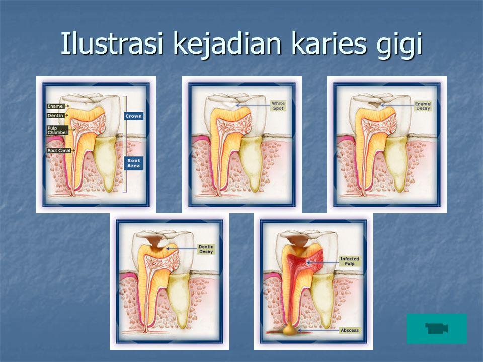 Ilustrasi kejadian karies gigi