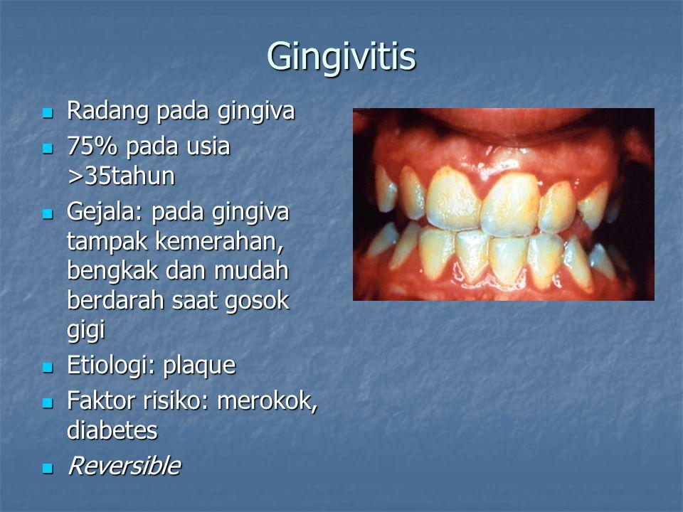 Gingivitis Radang pada gingiva Radang pada gingiva 75% pada usia >35tahun 75% pada usia >35tahun Gejala: pada gingiva tampak kemerahan, bengkak dan mu