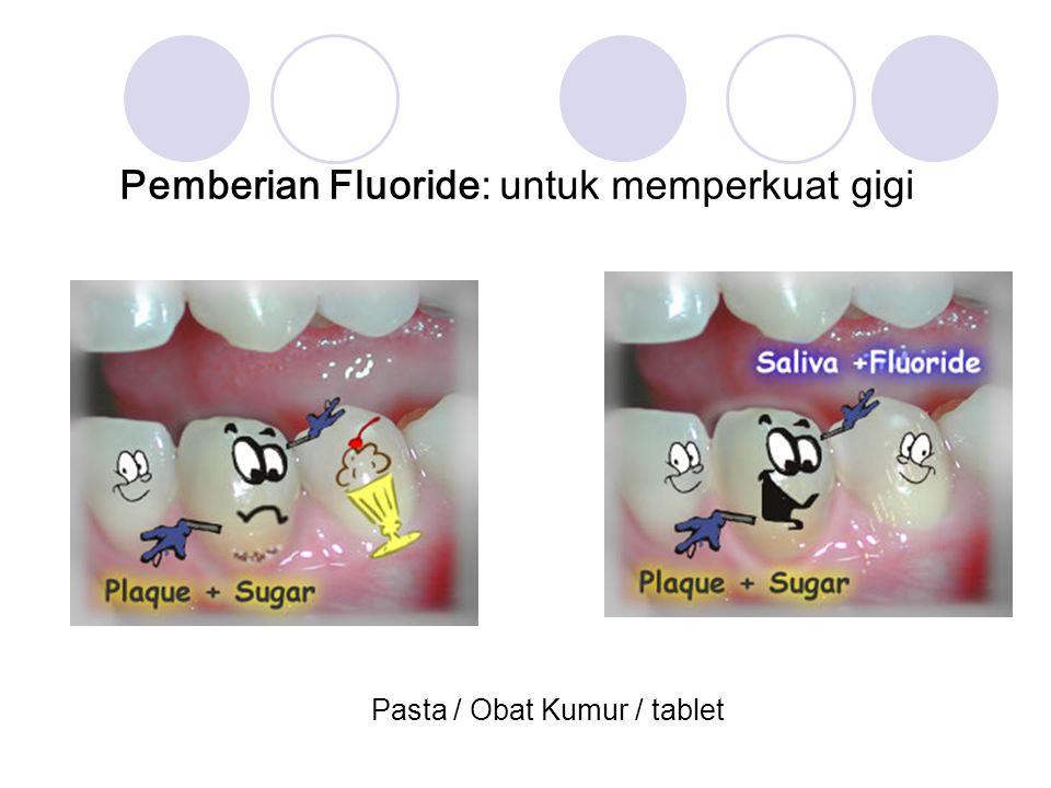 Pemberian Fluoride: untuk memperkuat gigi Pasta / Obat Kumur / tablet