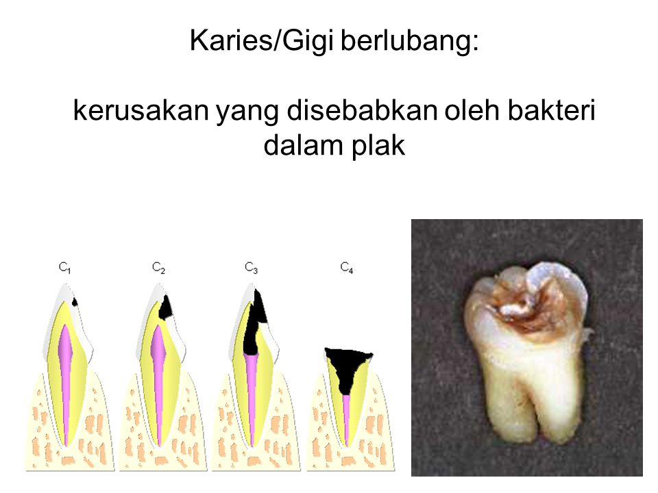 PLAK Endapan lunak yang tidak berwarna dan melekat erat pada permukaan gigi Terbentuk dari air ludah, sisa makanan yang halus, serta kuman.