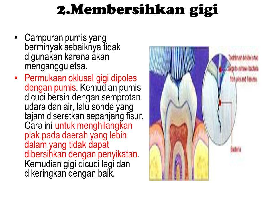 2.Membersihkan gigi Campuran pumis yang berminyak sebaiknya tidak digunakan karena akan menganggu etsa. Permukaan oklusal gigi dipoles dengan pumis. K