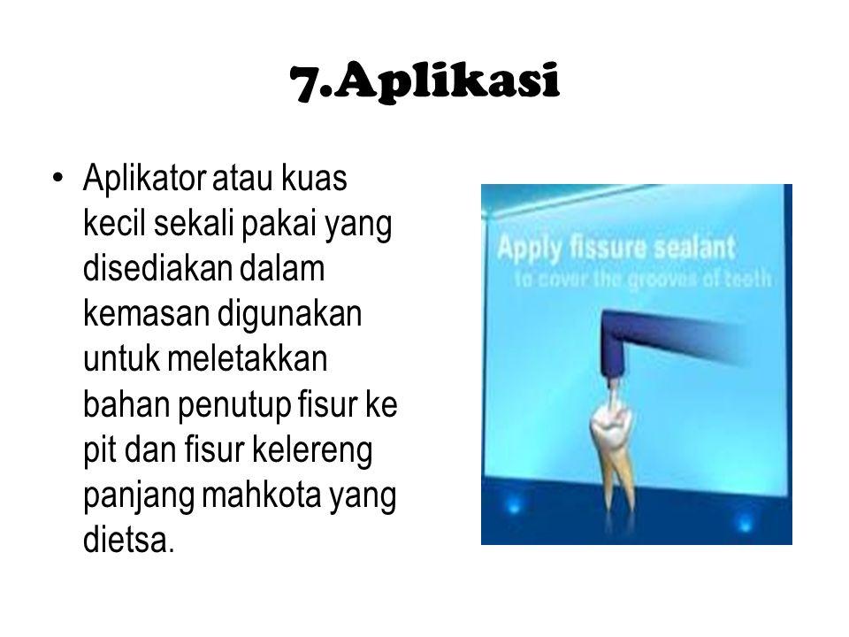 7.Aplikasi Aplikator atau kuas kecil sekali pakai yang disediakan dalam kemasan digunakan untuk meletakkan bahan penutup fisur ke pit dan fisur kelere
