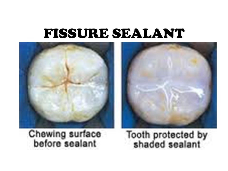 Fissure sealant Definisi fissure sealant: tindakan untuk mencegah terjadinya caries dengan melakukan penumpatan pada pit dan fissure yang dalam dengan bahan pengisi/ pelapis.