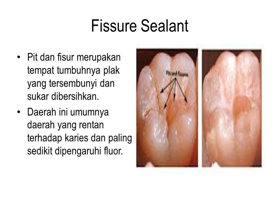 Fissure Sealant Pit dan fisur merupakan tempat tumbuhnya plak yang tersembunyi dan sukar dibersihkan. Daerah ini umumnya daerah yang rentan terhadap k