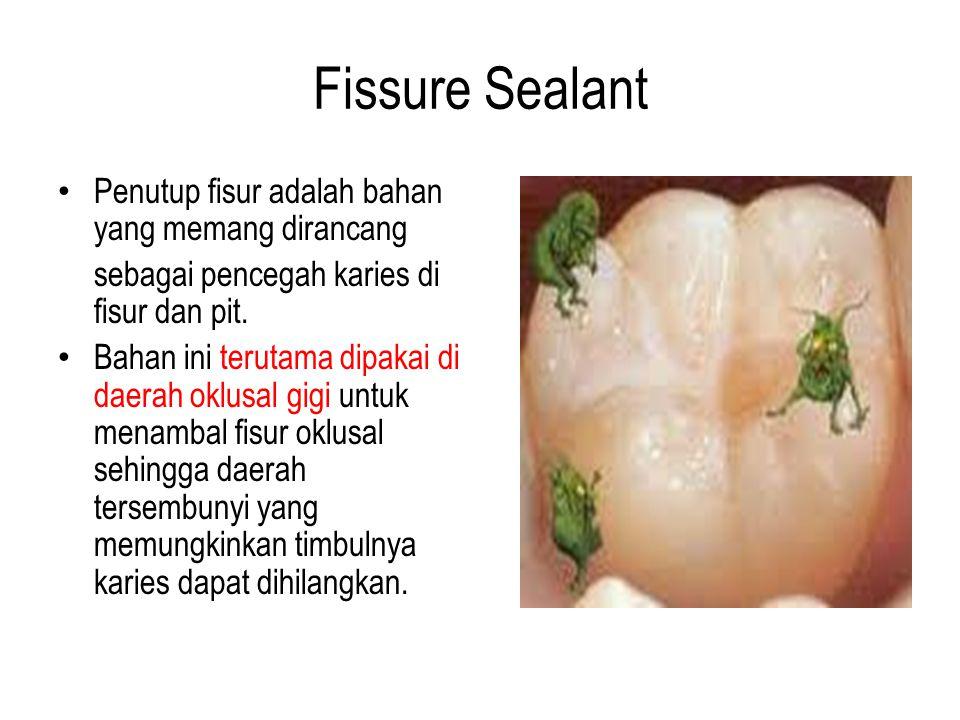 Fissure Sealant Penutup fisur adalah bahan yang memang dirancang sebagai pencegah karies di fisur dan pit. Bahan ini terutama dipakai di daerah oklusa
