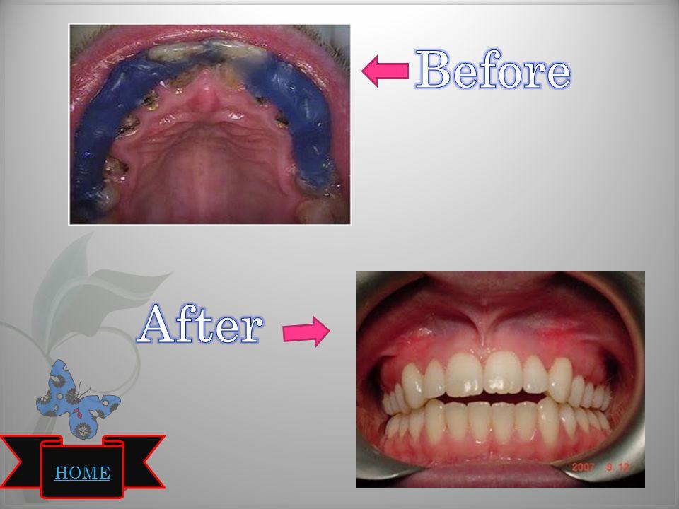 Protesa gigi tiruan di insersikan kembali kedalam mulut pasien, hasilnya sebagai berikut : Oklusi rahang atas dan rahang bawah dapat berkontak dengan baik dan tidak ada gigitan yang terbuka.