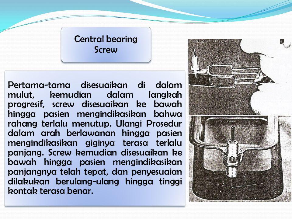 Pertama-tama disesuaikan di dalam mulut, kemudian dalam langkah progresif, screw disesuaikan ke bawah hingga pasien mengindikasikan bahwa rahang terla