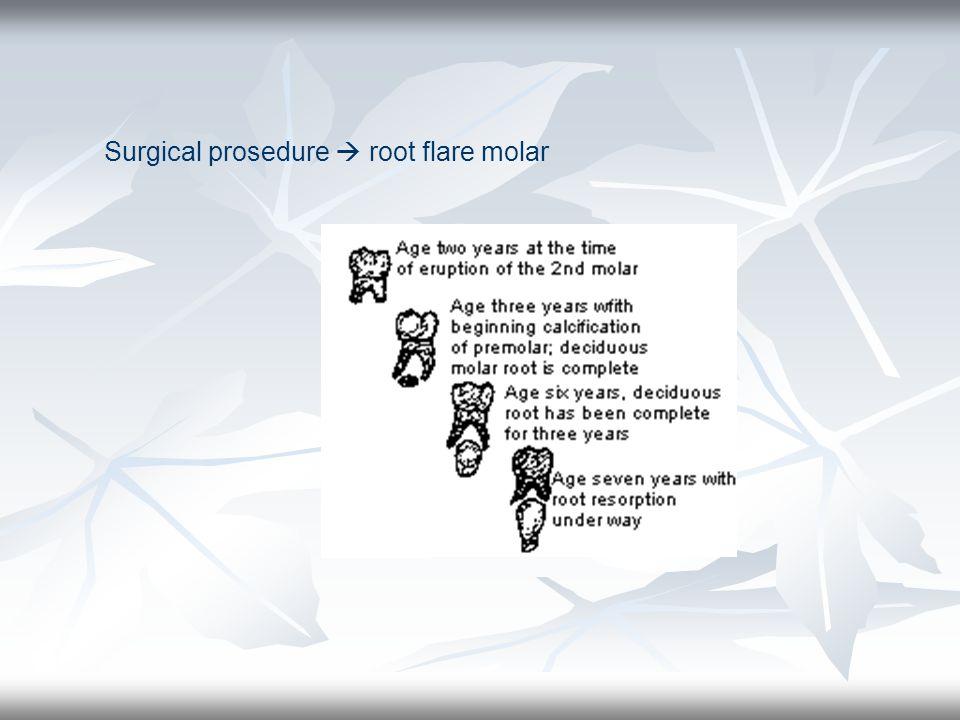 Surgical prosedure  root flare molar