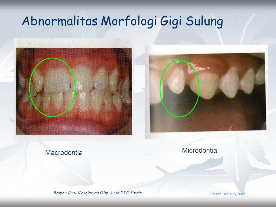Abnormalitas Morfologi Gigi Sulung Macrodontia Microdontia Source: Welbury,2005 Bagian Ilmu Kedokteran Gigi Anak FKG Unair