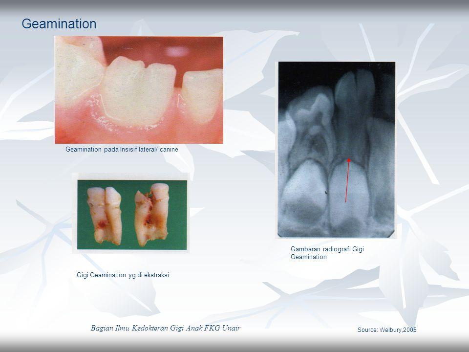 Geamination Geamination pada Insisif lateral/ canine Gigi Geamination yg di ekstraksi Gambaran radiografi Gigi Geamination Source: Welbury,2005 Bagian