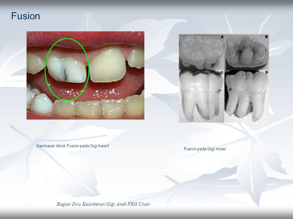 Conical Peg Shape Source: Welbury,2005 Bagian Ilmu Kedokteran Gigi Anak FKG Unair Gambaran radiografi conical peg shape pada anak dengan Ectodermal Dysplasia Protesa pada anak dengan Ectodermal Dysplasia