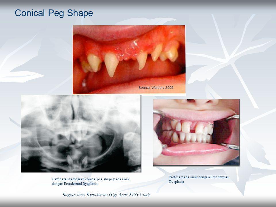 Conical Peg Shape Source: Welbury,2005 Bagian Ilmu Kedokteran Gigi Anak FKG Unair Gambaran radiografi conical peg shape pada anak dengan Ectodermal Dy