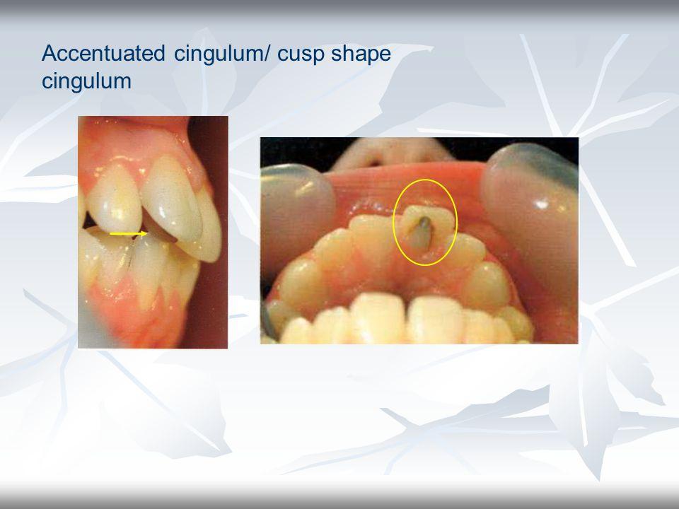 Accentuated cingulum/ cusp shape cingulum