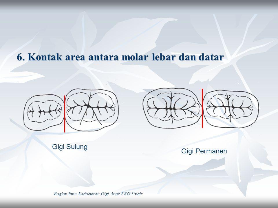 7.Warna lebih terang / muda / putih 8.Ukuran gigi sulung lebih kecil dalam semua dimensi 9.Ukuran mesio-distal lebih lebar dibanding tinggi Cervico-occlusal Bagian Ilmu Kedokteran Gigi Anak FKG Unair