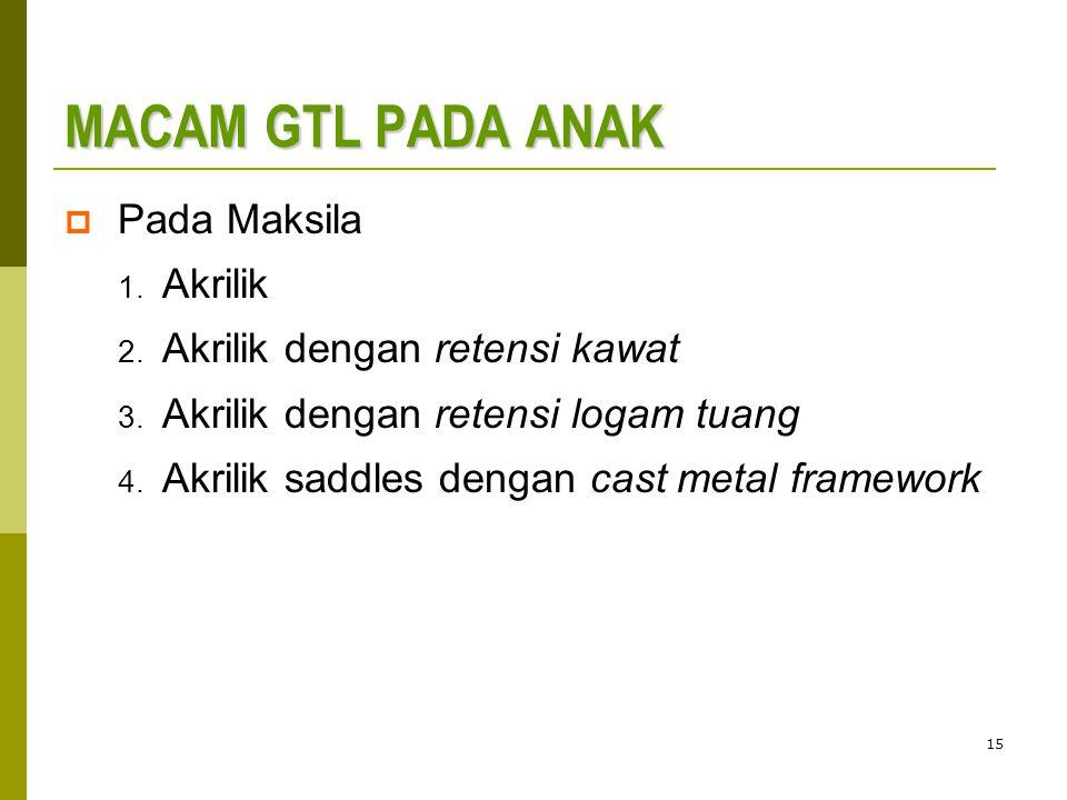 15 MACAM GTL PADA ANAK  Pada Maksila 1.Akrilik 2.