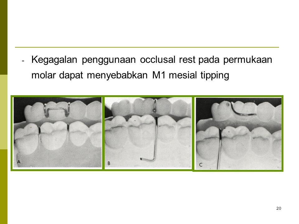 20 - - Kegagalan penggunaan occlusal rest pada permukaan molar dapat menyebabkan M1 mesial tipping