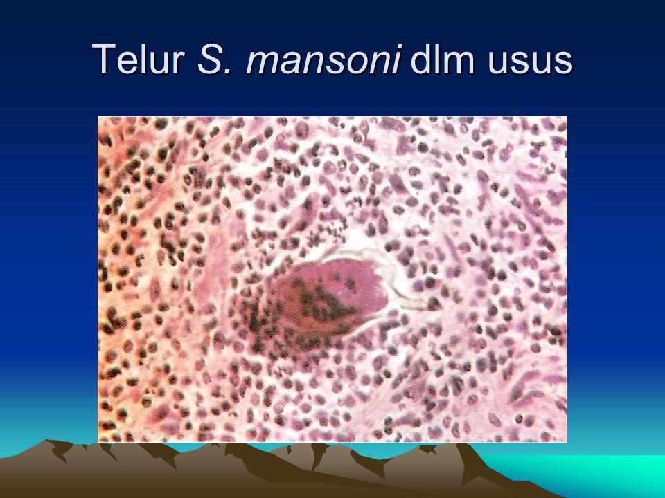 Telur S. mansoni dlm usus