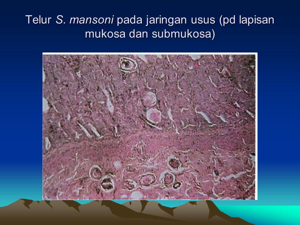 Telur S. mansoni pada jaringan usus (pd lapisan mukosa dan submukosa)