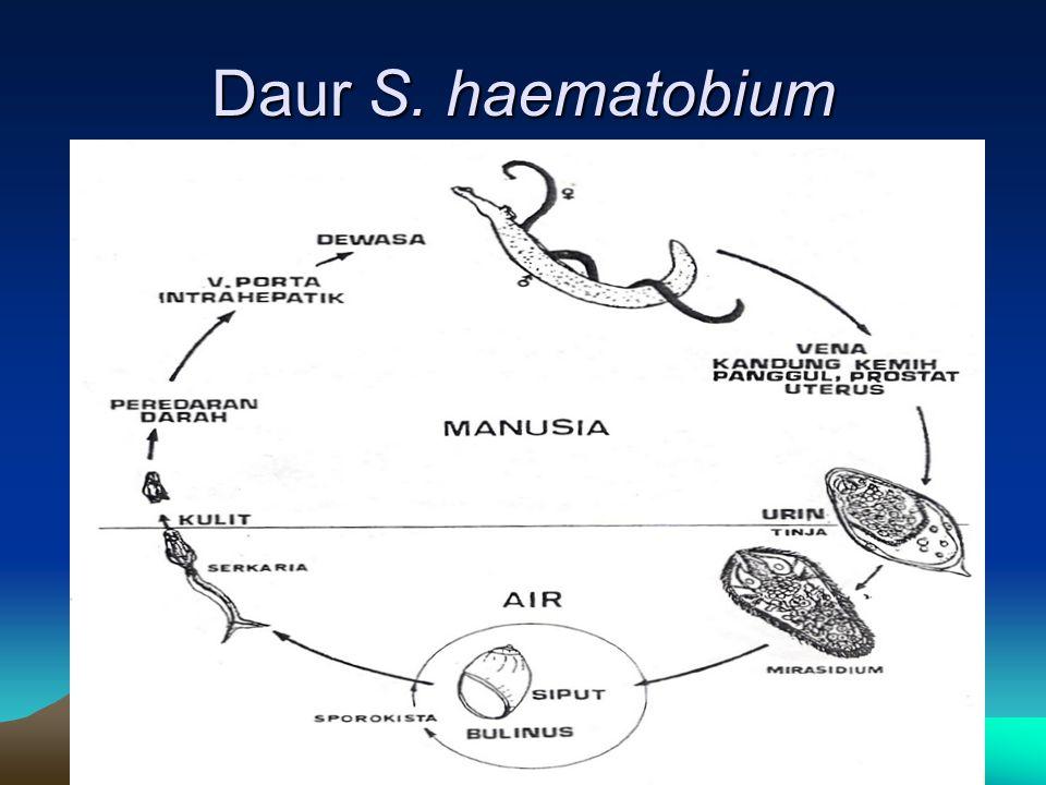 Daur S. haematobium
