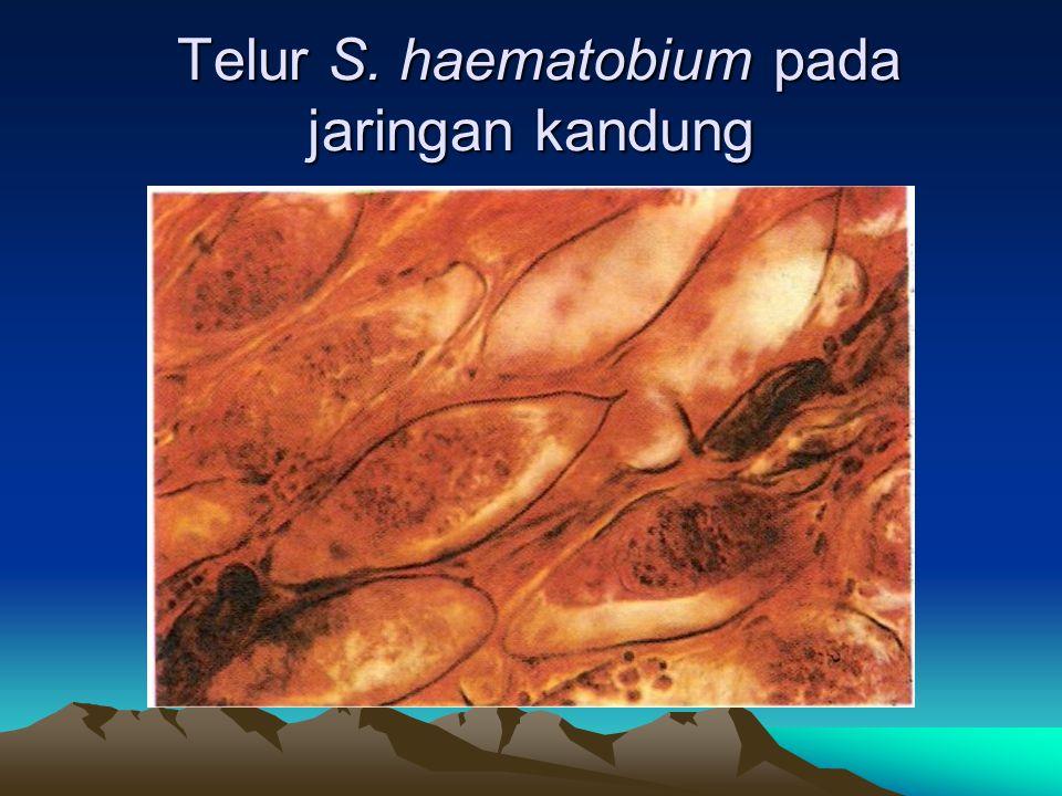 Telur S. haematobium pada jaringan kandung Telur S. haematobium pada jaringan kandung