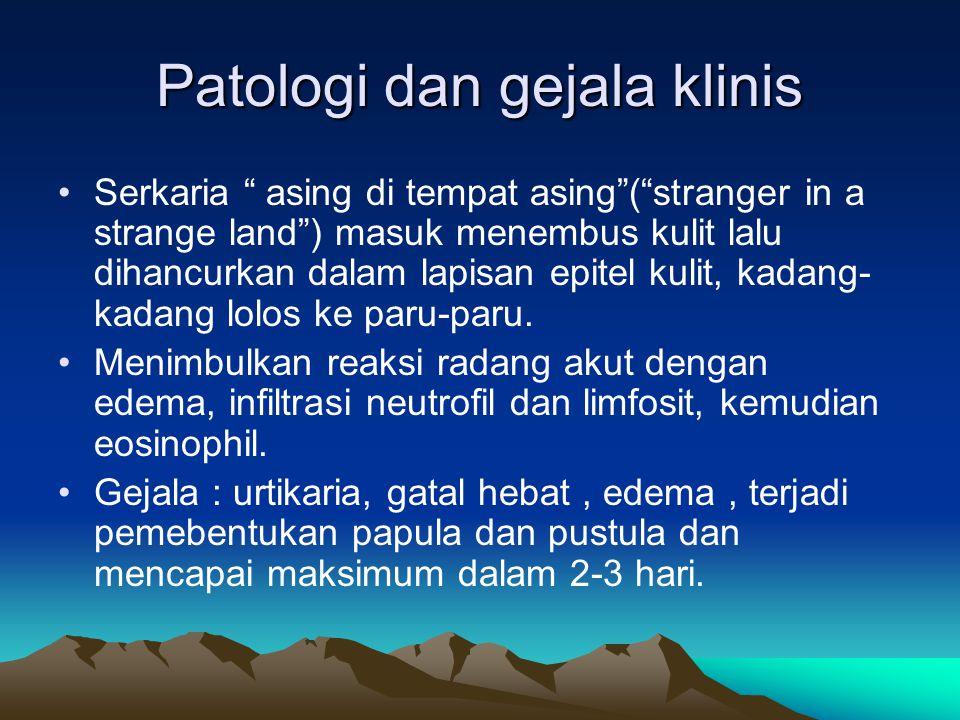 """Patologi dan gejala klinis Serkaria """" asing di tempat asing""""(""""stranger in a strange land"""") masuk menembus kulit lalu dihancurkan dalam lapisan epitel"""
