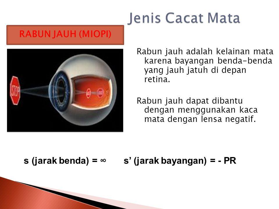 Apabila suatu mata batas pengelihatannya di luar batas mata normal, dikatakan mata mengalami gangguan atau cacat mata 2.